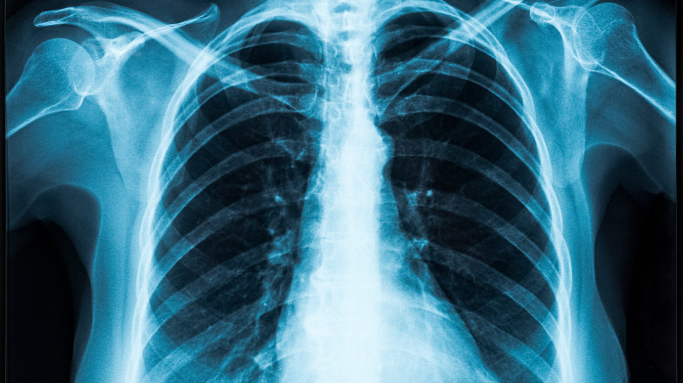 X-ray image of healthy lungs and chest area.