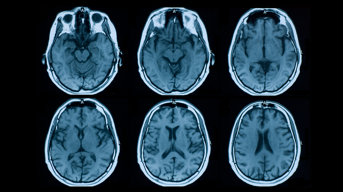 How Does MRI Help Diagnose MS? | Mayfair Diagnostics